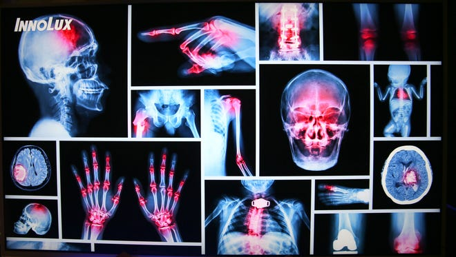 A display of medical imagery on a screen promotes Foxconn's products in that field.