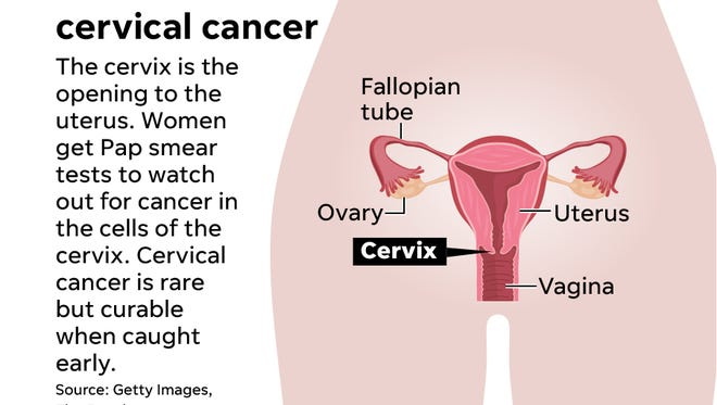 A new study, co-authored by a doctor at the University of Cincinnati Medical Center, reveals that the less-invasive surgical treatment for cervical cancer doesn't necessarily improve on chances for survival.