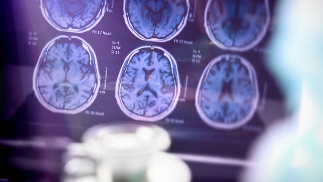 Brain scan results displayed on a screen.