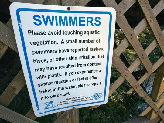 Algae can cause a host of health problems. The Florida Park Service warning to people visiting Florida springs.