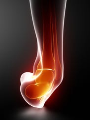 Sprains occur when there is injury to a ligament that