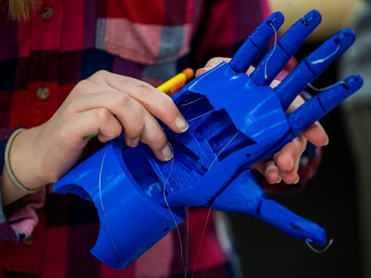 2 Prosthetic Arm Project