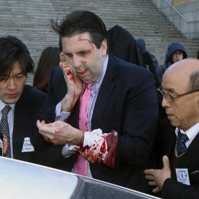 Injured U.S. Ambassador to South Korea Mark Lippert, center, gets into a car to leave for a hospital in Seoul, South Korea, Thursday. Lippert was attacked by a man wielding a razor and screaming that the rival Koreas should be unified, South Korean police and media said Thursday. His injuries weren't immediately clear and he was taken to a hospital for treatment.