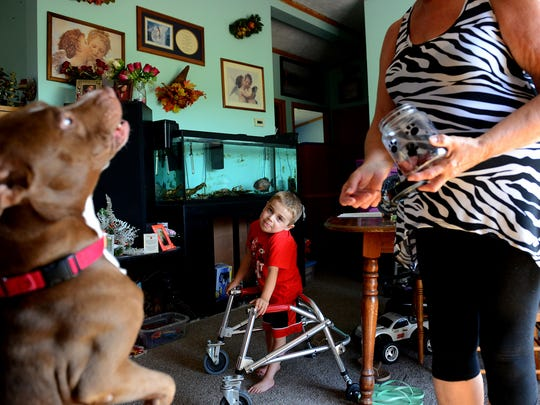Carl Cole, 5, watches as his grandmother Leona Simon tosses their dog a treat and he jumps to grab it at their house July 22, 2016 in Grand Ledge. Carl has Duchenne Muscular Dystrophy, a progressive genetic condition that causes muscle weakness. He also has a spinal curvature and only one lung and kidney, among other medical conditions.