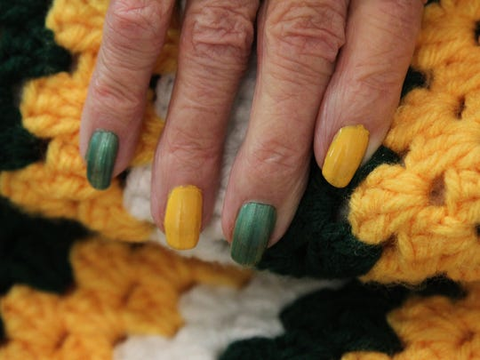 Phyllis Barttelt shows off her green and gold fingernails against a Packers' themed quilt that she made as she spoke with the media, friends, family and caregivers at the Benedictine Living Community of Wausau, Friday, October 17, 2014.