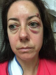 Ann Rowe, photographed shortly after she was attacked by convicted serial rapist Jermichael Lindsey in September 2015.