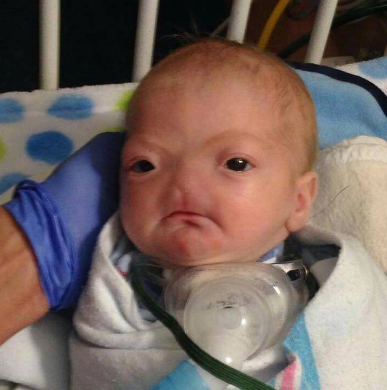 Baby has not facial expresion picture 296