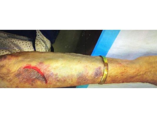 636646639763743408-injuries2.jpg