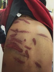 A doctor counted 36 bruises on Khin Par Thaing's 7-year-old
