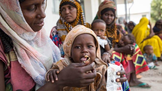 Fatuma Hussein,  feeds her child Yasin Ahmed at the Megenta Kebele clinic in a rural village Dubti Woreda, in Afar, Ethiopia.