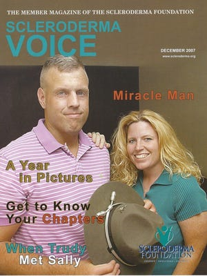 Scott Rike featured on the magazine cover of the Scleroderma Foundation.