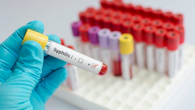 Syphilis blood sample