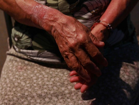 A farmworker who worked in a fig tree farm shows how