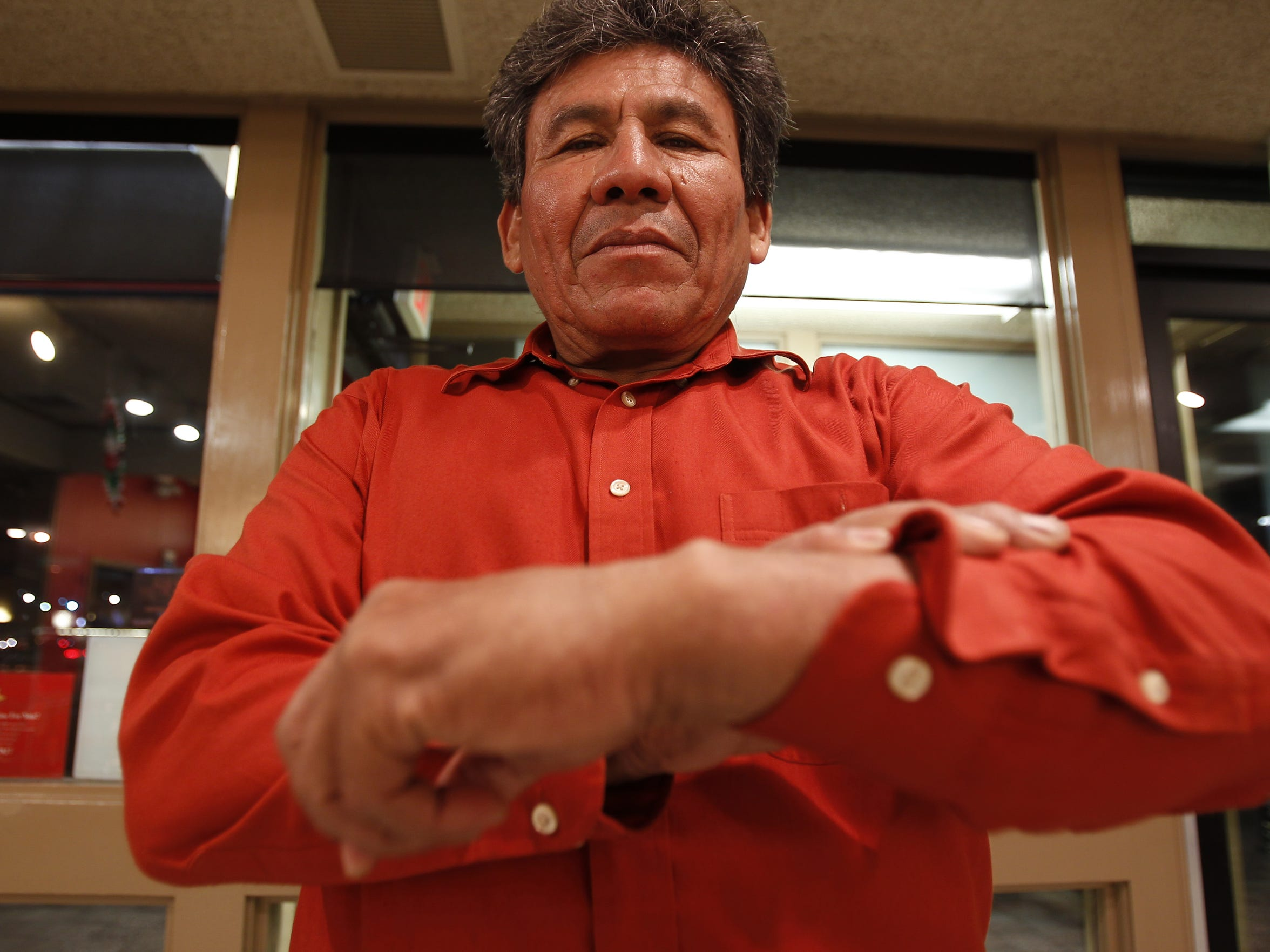 Manuel de Jesús Ortega Melendres shows the deformity in his right wrist, which was caused from an injury in his youth. It was made worse after being handcuffed by a Maricopa County Sheriff's Office deputy in September 2007.