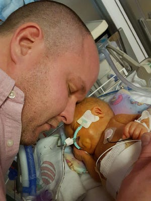 Brian Ludka rests his head near his infant son, Carson, at Milwaukee Children's Hospital.