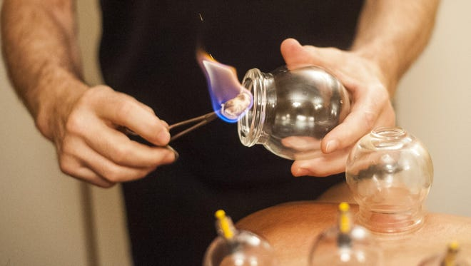Gaylord Henderson, massage therapist, demonstrates another technique, fire cupping, which uses a brief flame to create suction in Peak Health and Wellness on Tuesday.