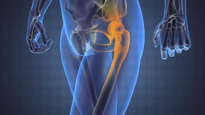 The risk for developing osteoporosis can be reduced starting at a young age.