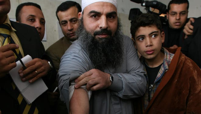 Egyptian cleric Osama Hassan Mustafa Nasr, known as Abu Omar, 44, shows a dark scar on his arm during his first public appearance since he was released from Egyptian custody last week, at a court house in Alexandria, Egypt, on Feb. 22, 2007. An Egyptian cleric allegedly kidnapped by CIA agents off the streets of an Italian city and taken to Egypt said he was tortured in an Egyptian prison.