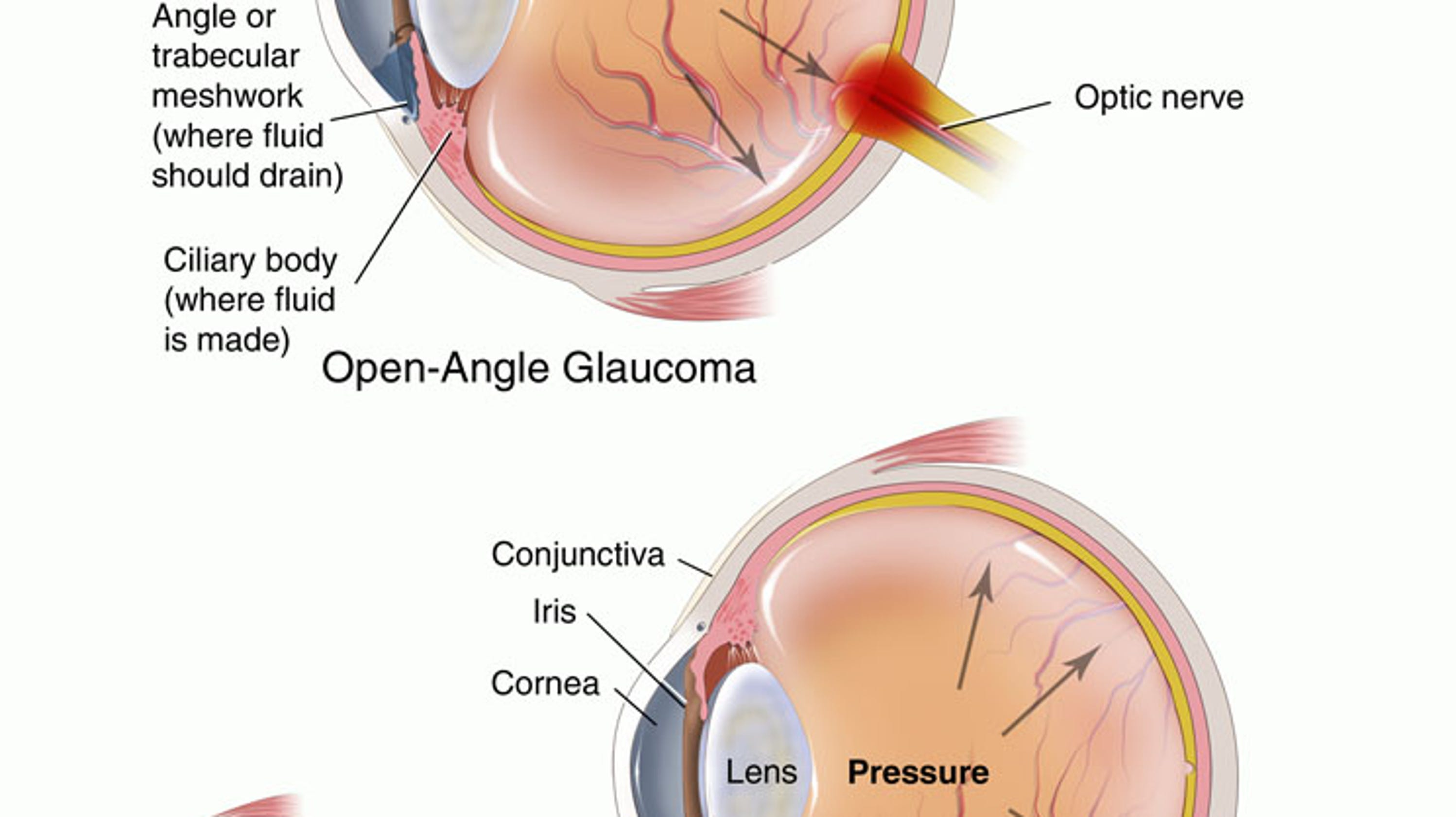 blindness langlo view distance article cataracts blinds journals global causes cause res of vision fulltext and hi can lrg impairment