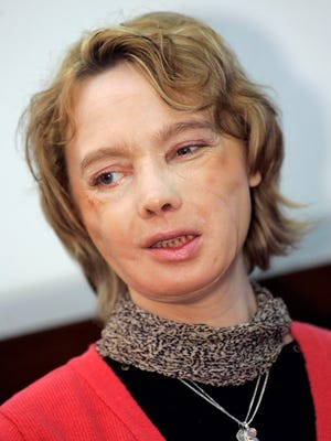 The 38-year-old French woman who received the world's first partial face transplant.