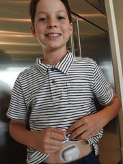 Lucas Lye, 12, rolls up his shirt to show his omnipod,