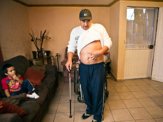 Jesus Castro Romo shows where he was shot Nov. 16, 2010, by Border Patrol Agent Abel Canales. The agent said Romo threatened him with a rock; Romo said Canales shot him while he was trying to run and hide.