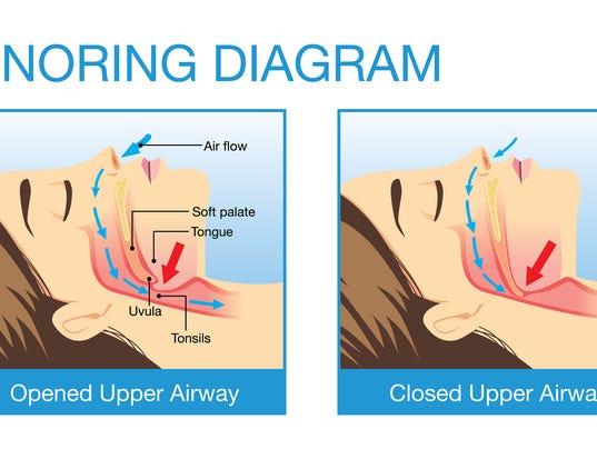 Sleep apnea: the serious sleep disorder