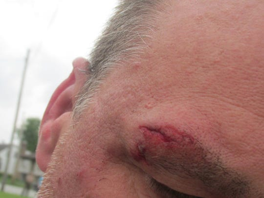 This man suffered minor injuries after the motorcycle