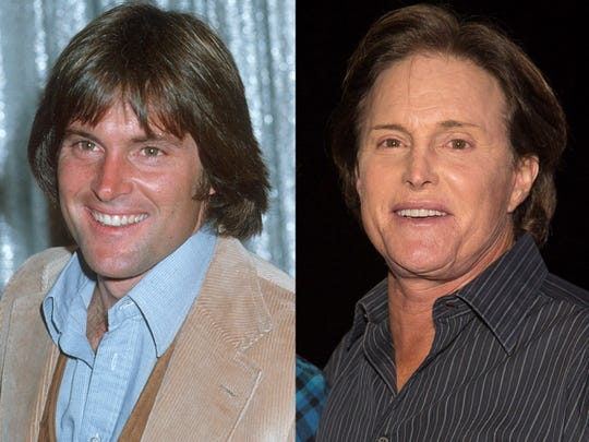 Bruce Jenner, before and after plastic surgery.
