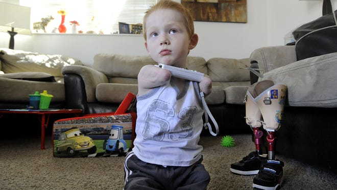 Austin Schoppert, 5,  holds the controller while he plays Wii using his chin at his home in Tea on April 10, 2012.