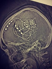 This X-ray shows the RNS device implanted in Bella