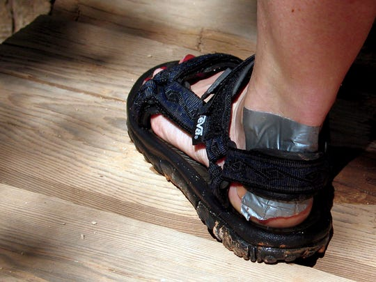 Does duct tape on aching, blistered feet spell misery?