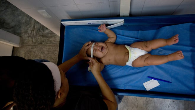 In this Feb. 11, 2016 photo, a nurse measures a baby's head during a routine medical examination at a medical center near Petare neighborhood in Caracas, Venezuela.  Preventing the Zika virus' spread in the absence of a public campaign in a Venezuela where the health care system is near collapse means the people most at risk, the poor, don't even know about the epidemic.