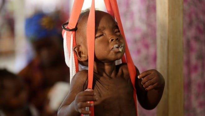 """FILE - In this Monday, Aug. 29, 2016 file photo, a malnourished child is weighed on a scales at a clinic run by Doctors Without Borders in Maiduguri, Nigeria. The United Nations children's agency warned Tuesday, Feb. 21, 2017 that almost 1.4 million children are at """"imminent risk of death"""" as famine threatens parts of South Sudan, Nigeria, Somalia and Yemen. (AP Photo/Sunday Alamba, File)"""