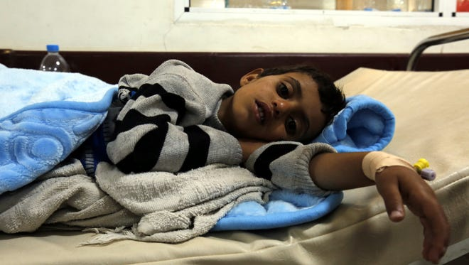 A Yemeni child receives  treatment at a hospital in Sana'a, Yemen.