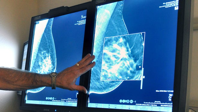 In this Tuesday, July 31, 2012, photo, a radiologist compares an image from earlier, 2-D technology mammogram to the new 3-D Digital Breast Tomosynthesis mammography in Wichita Falls, Texas. The technology can detect much smaller cancers earlier.