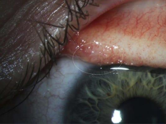 eye_worms