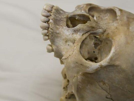 636519188794841883-skull.jpg