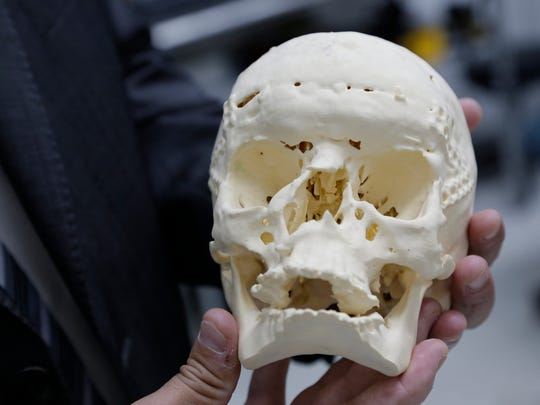 A 3-D printer created this exact replica of a skull with a gunshot wound used for forensic court explanations.
