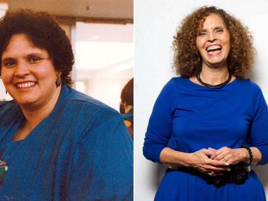 Marcia Meislin used to weigh about 300 pounds and struggled