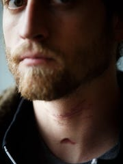 Scars on the neck of Alex Jacobsen can be seen as he
