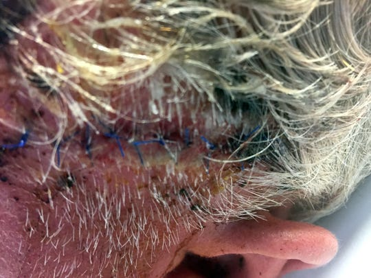 This photo provided by Tom Sommer shows wounds that