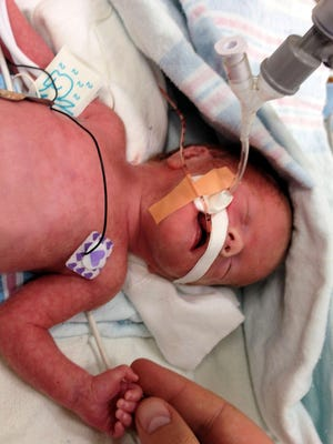 Madeline Marie Richard was 2 pounds, 11 ounces and 15.5 inches long when she was born May 7, 2014, by C-section. She died that same day of the injuries she suffered in utero — the victim of a drunken driver.