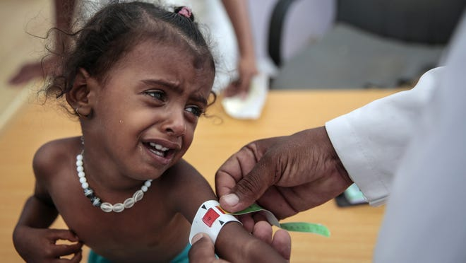 In this Oct. 1, 2018, photo, a doctor measures the arm of a malnourished girl at the Aslam Health Center, Hajjah, Yemen. A UN report says feeding a hungry planet is growing increasingly difficult as climate change and depletion of land and other resources undermines food systems.