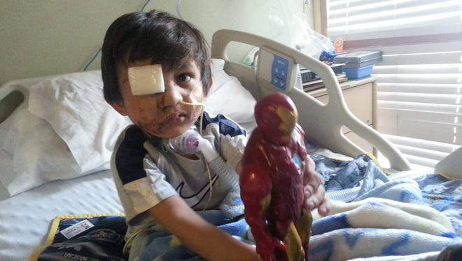 Kevin Vicente, 4, had to undergo five surgeries after he was mauled by a pit bull mix on Feb. 20, 2014.