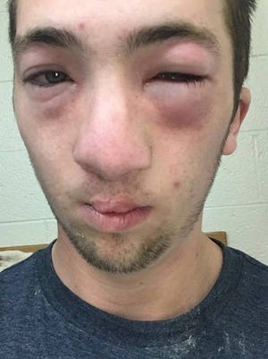 "Andrew Seely, a former Central Michigan University student with a severe allergy to peanuts, was allegedly hazed at an off-campus fraternity where another student spread peanut butter on his face while he was passed out in October 2016, causing swelling. ""He could have been killed,"" his mother says. University officials are investigating."
