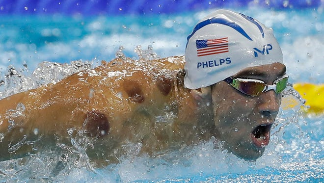 As Michael Phelps competes in a heat of the men's 200-meter butterfly during the swimming competitions at the 2016 Summer Olympics, the cupping marks on his shoulders are clearly visible.