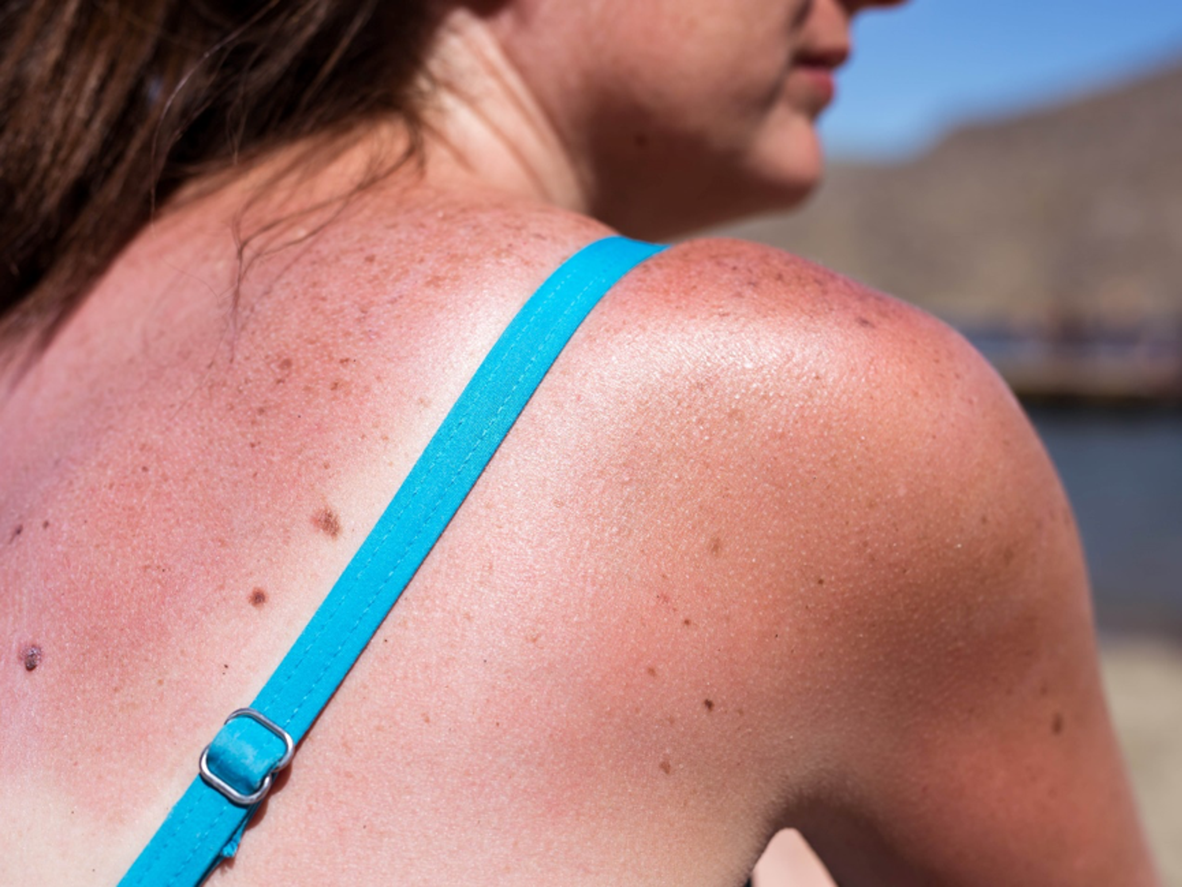 The risk of melanoma doubles after five sunburns.