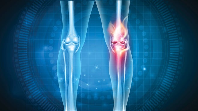 X-rays of knees with osteoarthritis inflammation in one knee