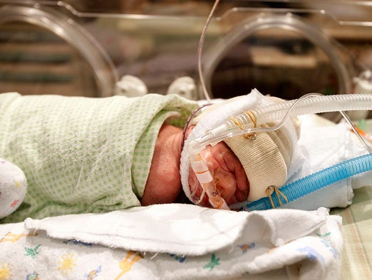 41-day-old Eivan Jones, who was born at 28 weeks gestation and 1 pound, 12 ounces, at Salem Hospital's neonatal intensive care unit. The hospital will soon begin taking donor milk for Portland-based Northwest Mothers Milk Bank.